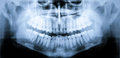 X-ray scan of teeth Royalty Free Stock Photography