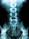 X-ray of a young male spine Royalty Free Stock Photo