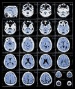xray film of the brain Royalty Free Stock Photo