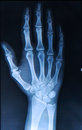 Xray of hand fingers human Stock Photography