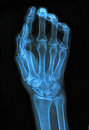 Xray of hand image medical background Royalty Free Stock Photo
