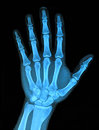 Xray hand x ray image of right Stock Image