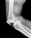 Xray of a human knee isolated Royalty Free Stock Photo