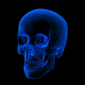 Xray of human skull head isolated x ray on black background right front view Royalty Free Stock Photos
