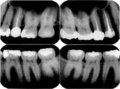 Xray image of capped tooth Stock Photos