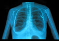 Xray lung Royalty Free Stock Photo