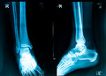 Xray picture Royalty Free Stock Photo