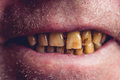 Yellow and curved teeth of a smoker covered with dental stone Royalty Free Stock Photo