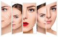 The young female face. Antiaging and thread lifting concept Royalty Free Stock Photo