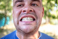 Young man with a chipped tooth Royalty Free Stock Photo