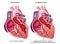 Stock Image :  充血的心脏