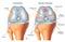Stock Image :  膝盖的关节