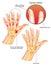Stock Image :  Artritis psoriática