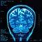 Stock Image : Brain MRI