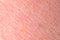 Stock Image : Dry skin