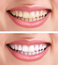 Stock Image : Healthy teeth and smile