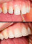 Stock Image : Porcealain teeth