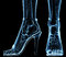 Stock Image : Wolumen feet under x-ray