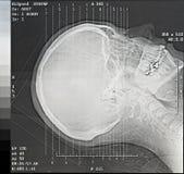Ángulos de la exploración del CT Imagen de archivo