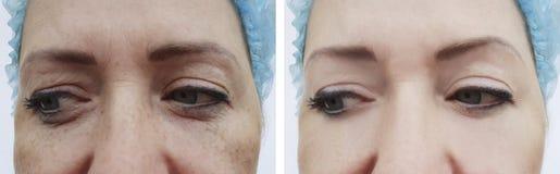 以前女性前额皱痕在水合的做法以后 免版税库存图片