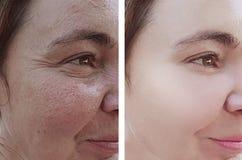 以前女性皱痕在水合的回复疗法作用更正procedureremoval s以后 免版税库存照片
