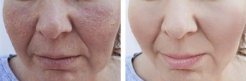 以前女性皱痕在治疗效果疗法作用更正procedureremoval s以后 免版税库存图片