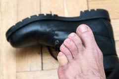 供以人员应用在可怕的水泡的手膏药在人的脚跟 免版税库存图片