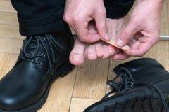 供以人员应用在可怕的水泡的手膏药在人的脚跟 库存照片