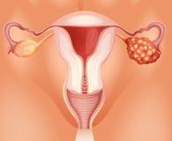 Äggstocks- cancer i kvinna royaltyfri illustrationer