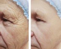 Äldre för skrynklatillvägagångssätt för man före och efter terapi royaltyfri bild