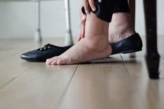 Äldre kvinna som svällas fot som sätter på skor arkivbild