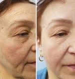 Äldre kvinnaframsida för skrynklor som före och efter hydratiserar vård- kosmetiska tillvägagångssätt för korrigering, terapi som royaltyfri fotografi