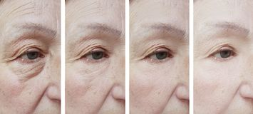 Äldre kvinnaframsidaskrynklor för tillvägagångssätt efter behandling fotografering för bildbyråer