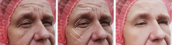 Äldre kvinnans skrynklor vänder mot före och efter korrigeringstillvägagångssätt royaltyfri fotografi