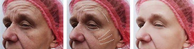 Äldre kvinnans skrynklor vänder mot tillvägagångssätt för problemcorrection för korrigeringsregenerering före och efter royaltyfria foton