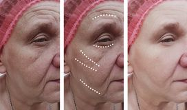 Äldre kvinnans skrynklor vänder mot tillvägagångssätt för problemcorrection för korrigeringsresultatregenerering före och efter royaltyfri foto