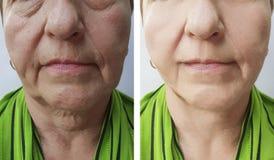 Äldre resultat för behandlingar för tillvägagångssätt för föryngring för kvinnaskrynklor före och efter arkivfoto