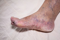 Ältere Beinprobleme Stockfotos