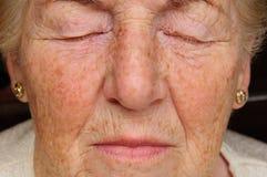 Ältere Frau betroffen Lizenzfreies Stockbild