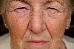 Ältere Frau betroffen Stockfoto