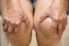 Ältere Frau, die unter dem sitzenden Stuhl der Knieschmerz, ihr schmerzliches Knie eigenhändig massierend leidet stockfotos