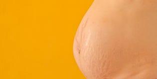 Ärr för elasticitetsfläckar av en gravid kvinna. Royaltyfri Foto