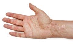 Ärr med häftklammer på handleden efter kirurgi Brott av benen av händerna som isoleras på vit bakgrund arkivbilder