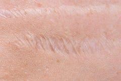 Ärr på huden Arkivbilder