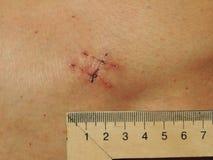 Ärr på magen av patienten Royaltyfri Foto