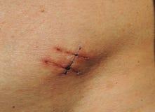 Ärr på magen av patienten Fotografering för Bildbyråer