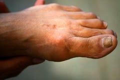 Ärret på foten efter operationen på benen Arkivfoton