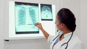 Ärztin zeigt Stift auf Dorn auf dem Röntgenstrahlbild stock video footage