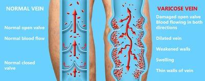Żylakowate żyły na seniora żeńskich nogach Struktura normalne i żylakowate żyły ilustracji