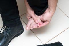 在人脚的血淋淋的可怕的水泡与放置新的黑的皮鞋  免版税库存照片